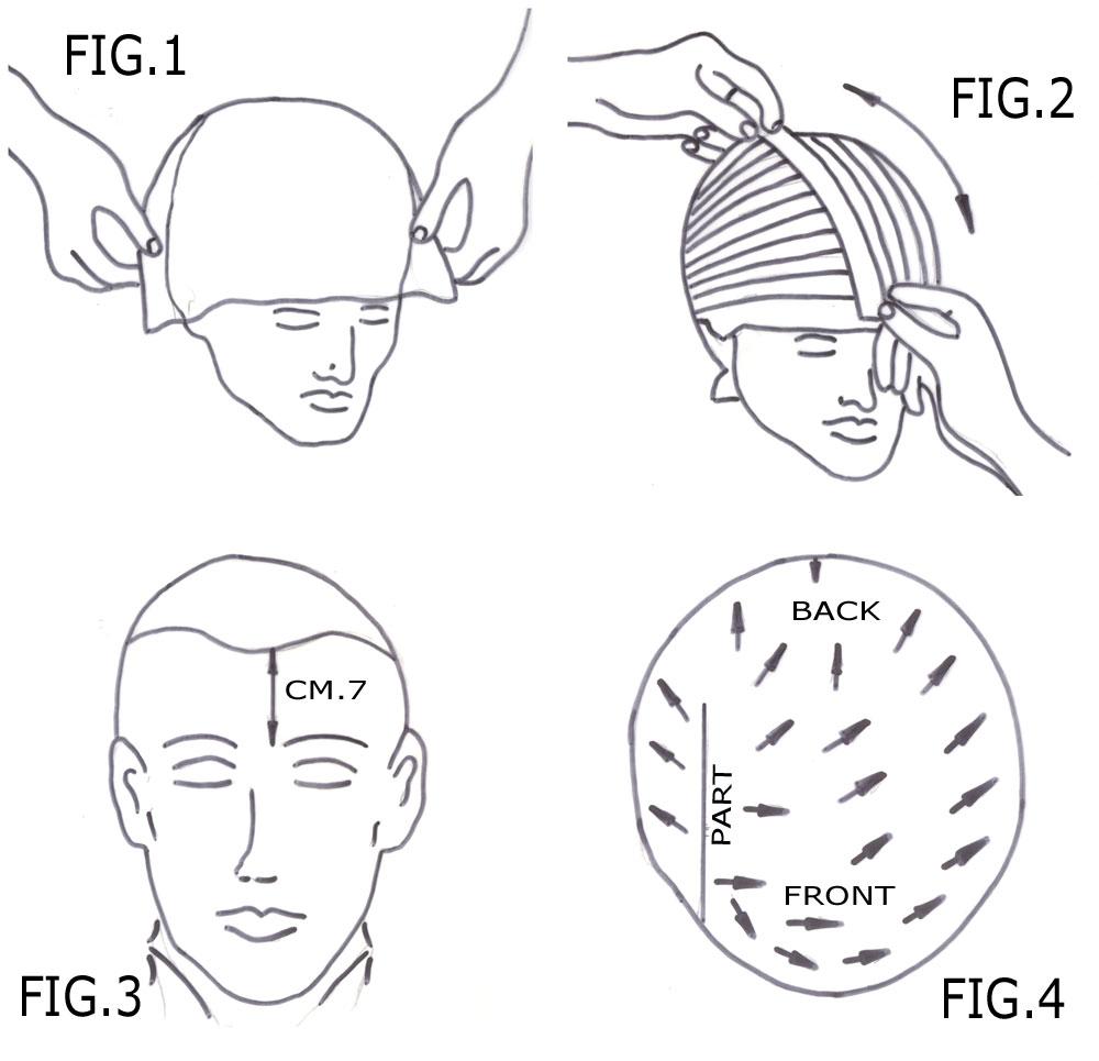 Calco del parrucchino
